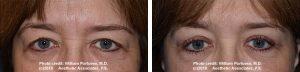 eyelid surgery lift in Portland Oregon